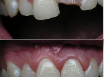 Vysoká zručnosť zubného technika pri opakovaní tvaru a farby zuba