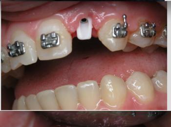Celokeramická korunká na abbutment (na implantát).