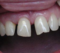 krivé predne zuby